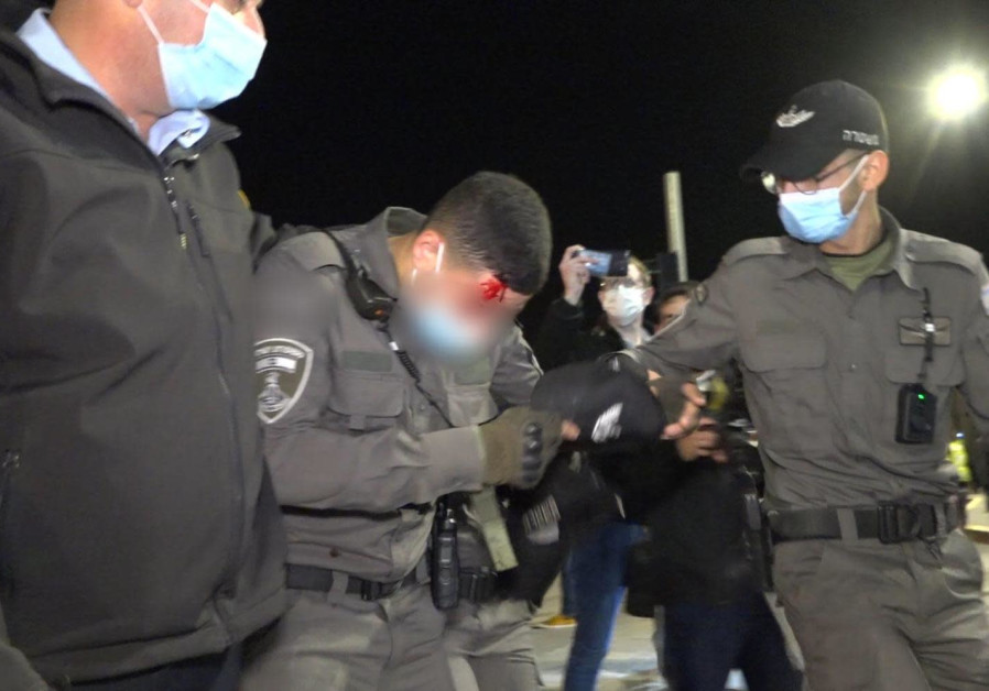 The wounded Border Police officer at the protests, December 21, 2020.