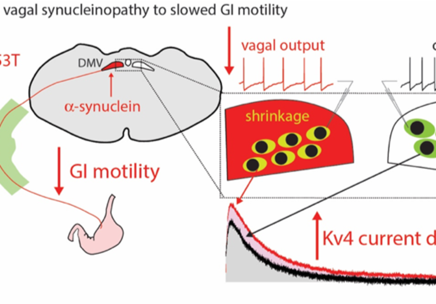 A model for slowing down the digestive system following the expression of alpha-synuclein protein in the brainstem. (Credit: J. GOLDBERG/J. ROEPER)