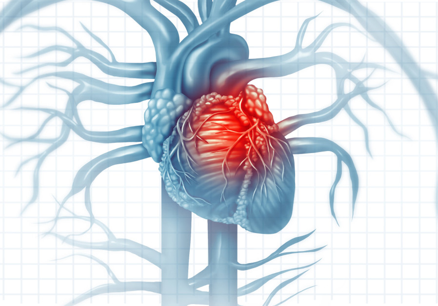 Myocardial infarction (Credit: ING)