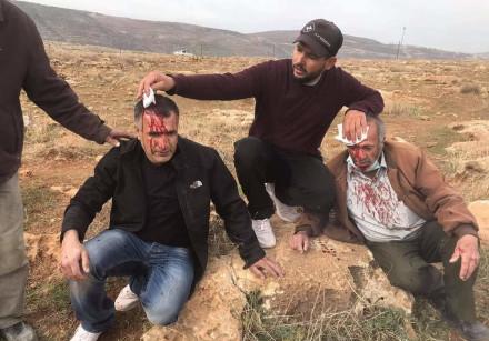 Palestinian farmer and son injured in territorial dispute