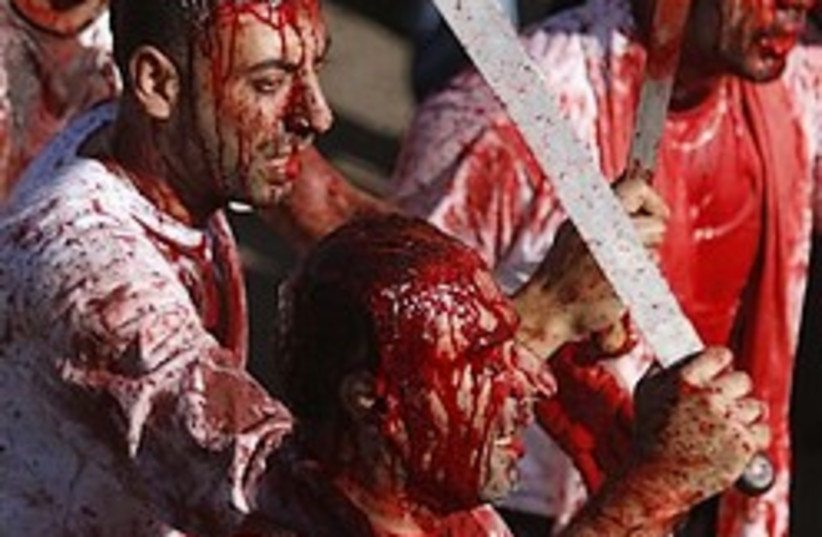 shiites self inflicted wounds GORY 248.8 (photo credit: )