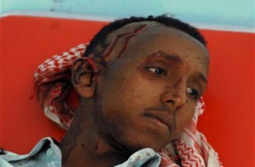 Somalia fighting (photo credit: APS)