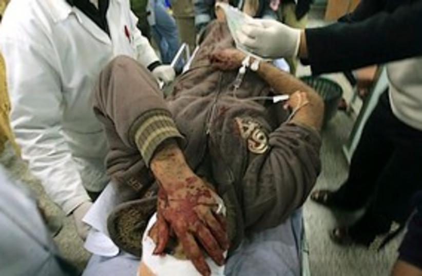 gaza airstrike wounded 311 (photo credit: AP)