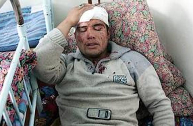 uzbek man injured 311 (photo credit: AP)