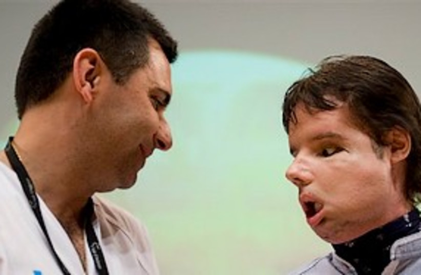 face transplant 311 (photo credit: AP)