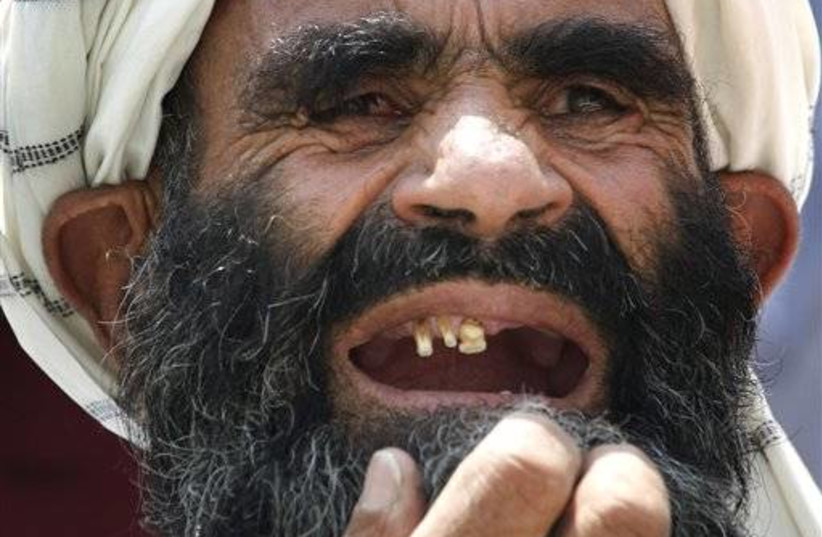 gallery_toothless old man (photo credit: Associated Press)