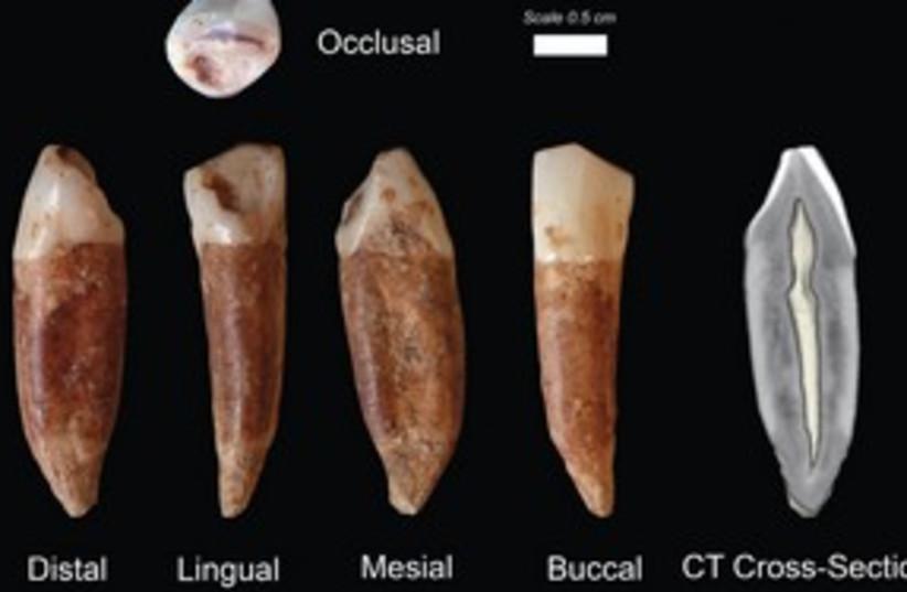Teeth from Qesem cave 311 (photo credit: Prof. Israel Hershkowitz/TAU)