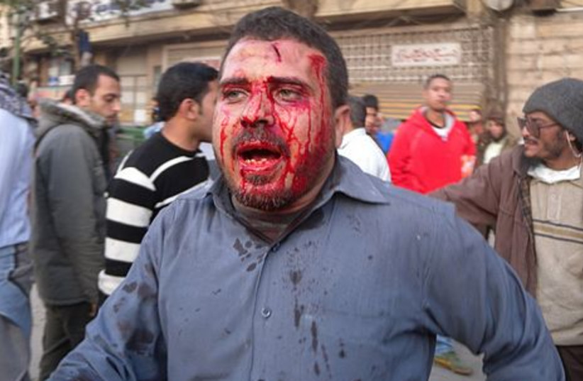 A bloodied Egyptian rioter