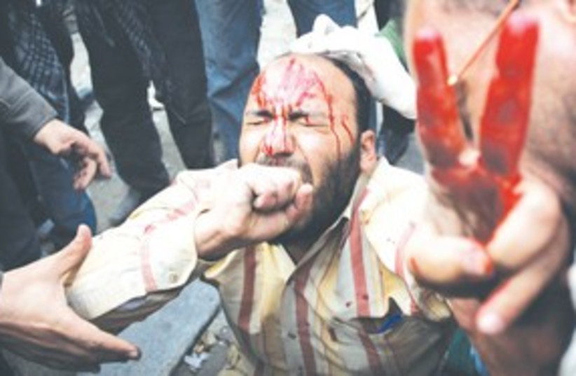 Bloodied Egyptian protester peace sign 311 AP (photo credit: AP)