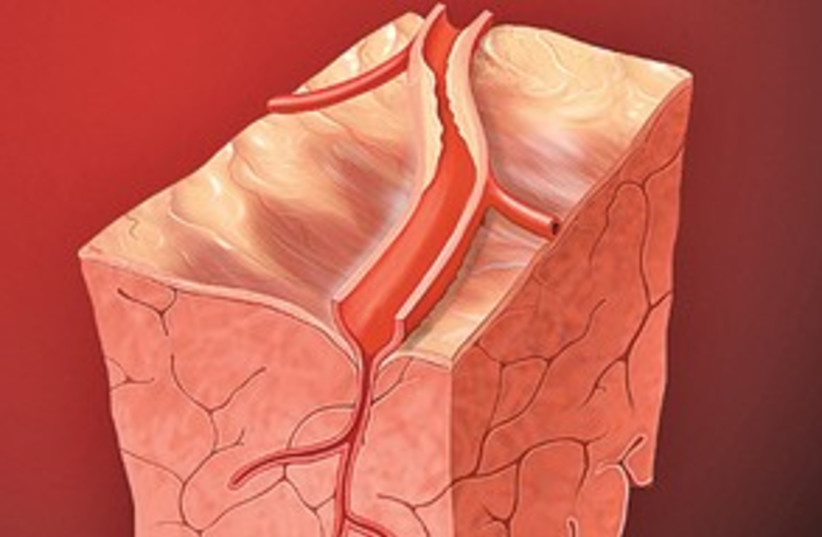 Coronary Artery 311 (photo credit: Creative Commons)