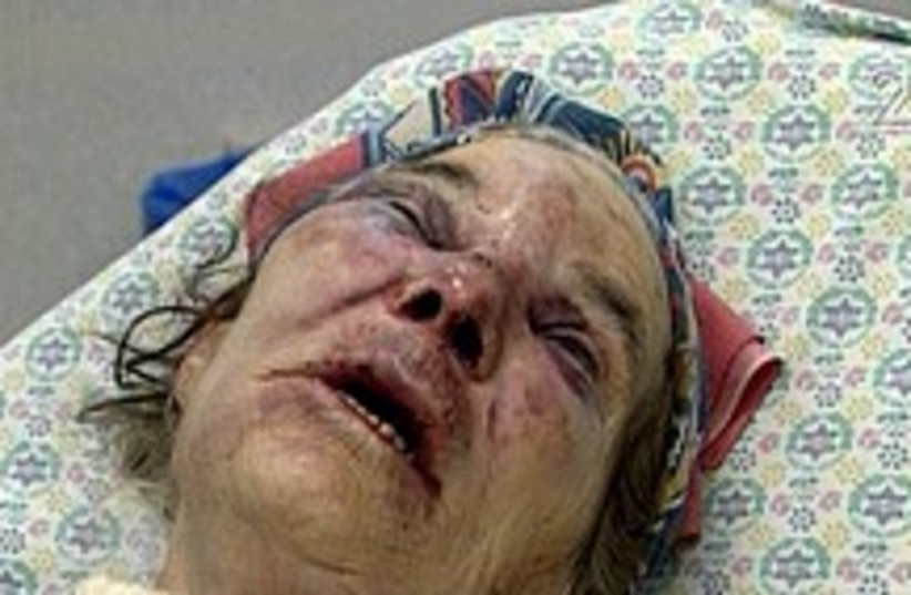 old woman beaten (photo credit: Channel 2)