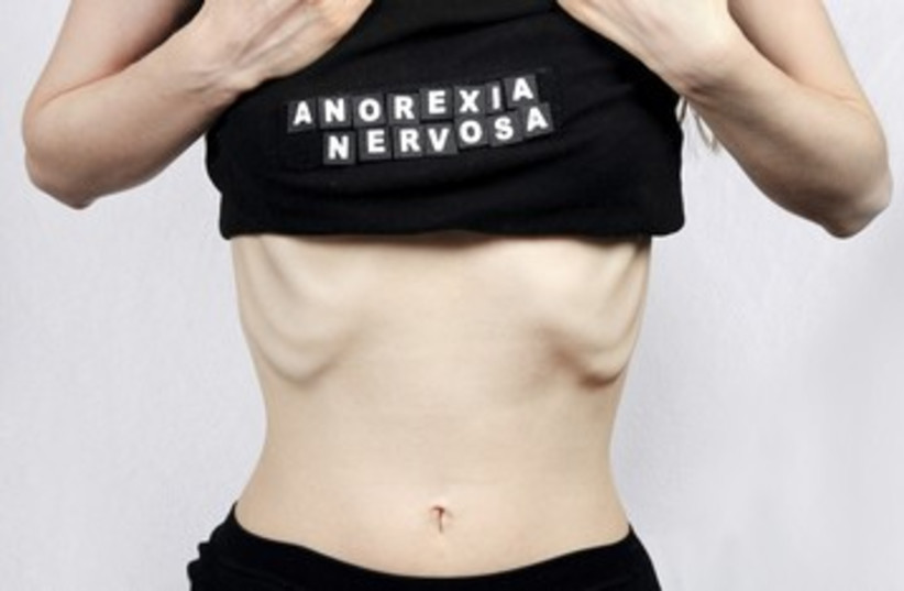 anorexia anorexic eating disorder skinny 390 (photo credit: iStockphoto)