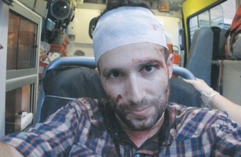 Gil Shefler after being attacked by Greek mob 370 (photo credit: Gil Shefler)