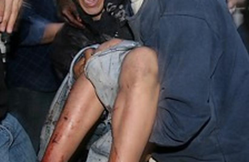 wounded Gazan 224.88 (photo credit: AP)