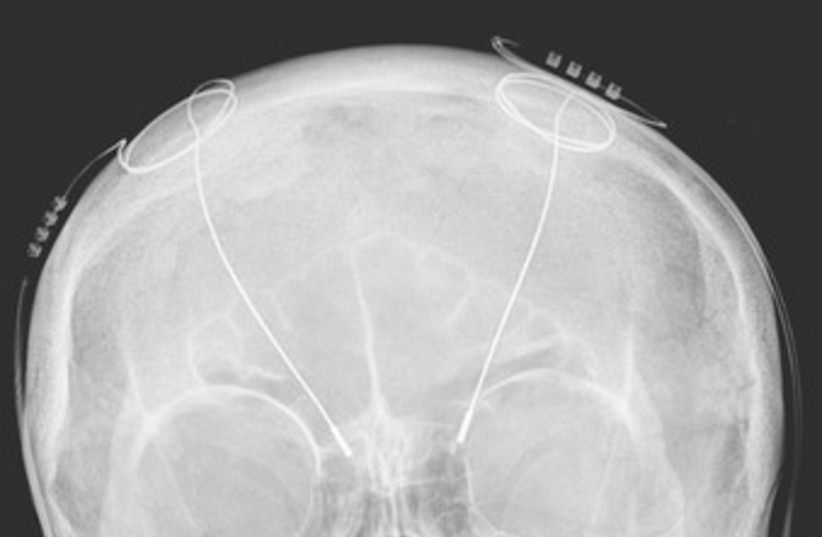 X RAY shows DBS probes in the brain 370 (photo credit: Wikimedia Commons)