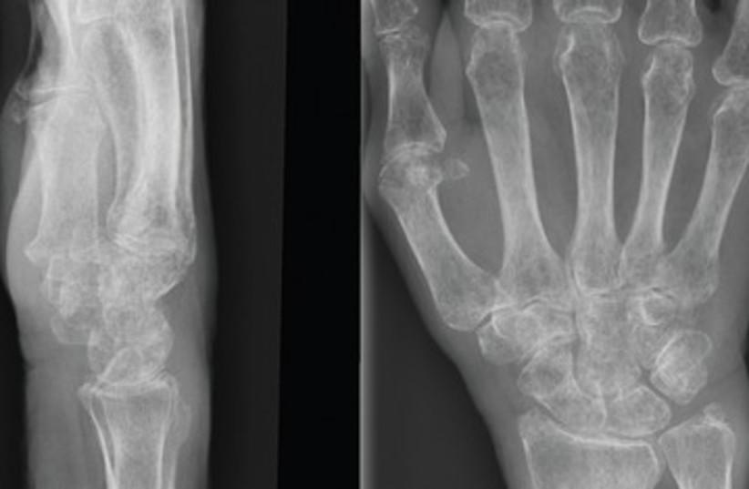 Bones X-ray hand skeleton 390 (photo credit: Wikimedia Commons)