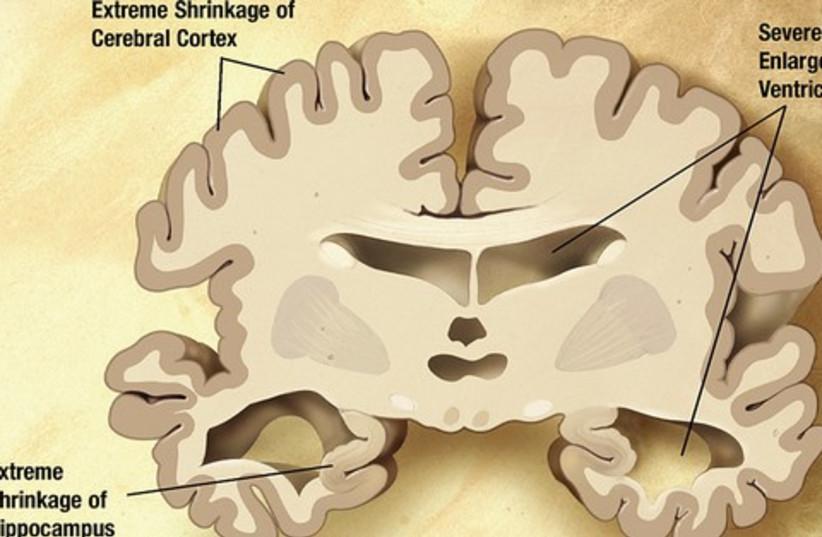 Brain with Alheimer's 521 (photo credit: Wikimedia commons)