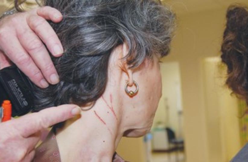 Bat attacks woman 370 (photo credit: Courtesy Kaplan Medical Center)