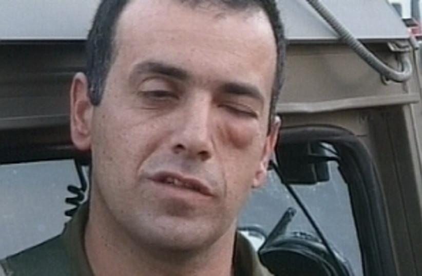 soldier black eye 298.88 (photo credit: Channel 1)