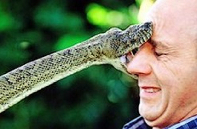 snake bite face 248.88 (photo credit: )