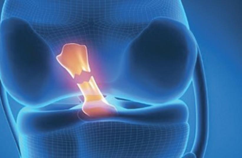 torn knee ligament 370 (photo credit: ISRAEL21c)
