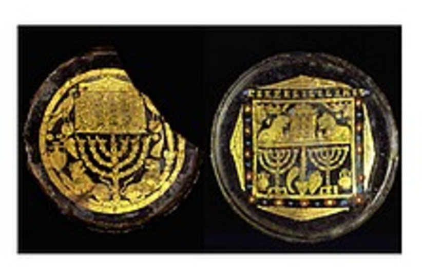 medallions 224 88 ap (photo credit: AP)