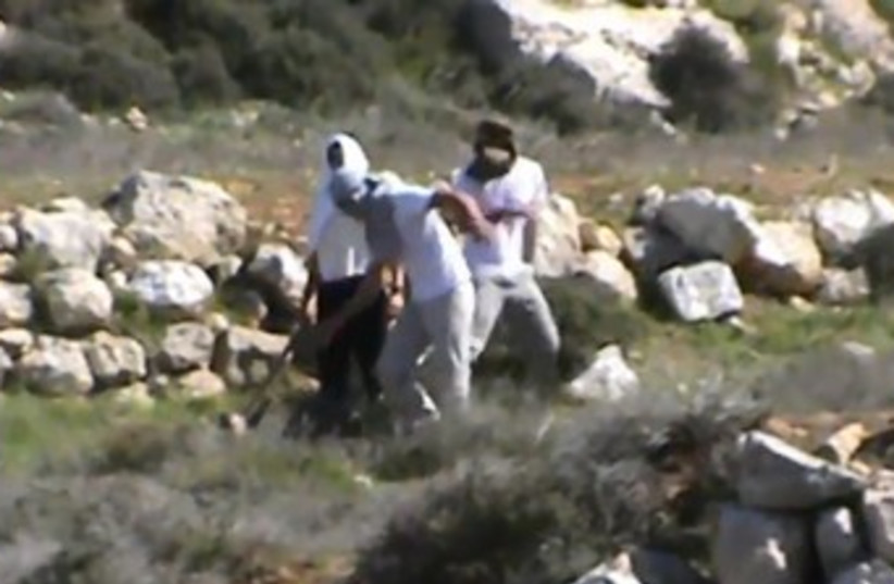 Settlers attack activist. (photo credit: Courtesy)