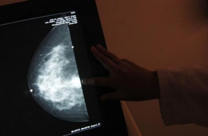 A monitor shows the image of a woman infected with breast cancer. (photo credit: REUTERS)