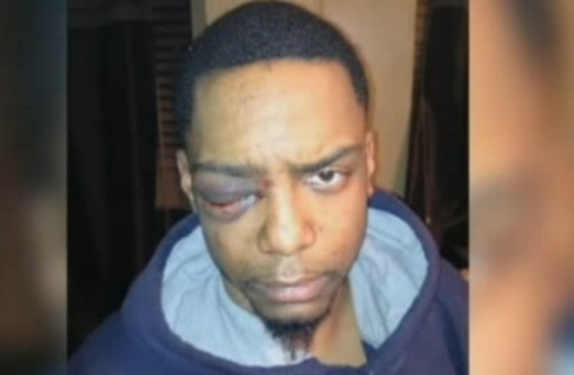 Victim Taj Patterson, after being attacked  (photo credit: screenshot)
