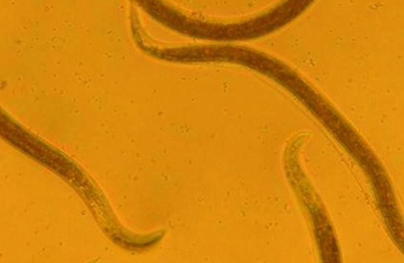 Nematode worms. (photo credit: BIOBEE)