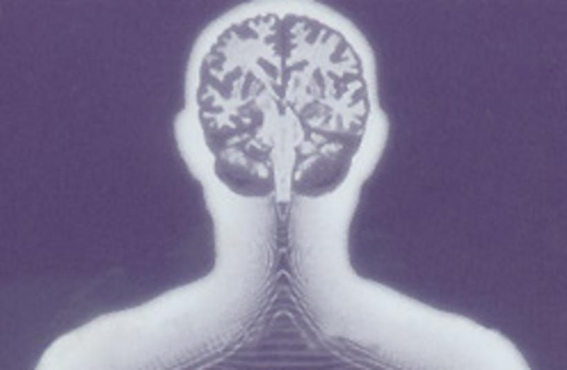 xray brain 88 248 (photo credit: Courtesy)