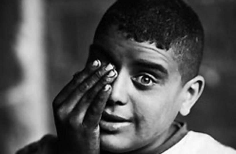boy covering eye 248 88 (photo credit: Muhammed Muheisen)
