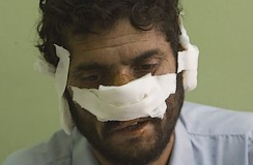 nose and ears cut off by Taliban 248.88 (photo credit: )