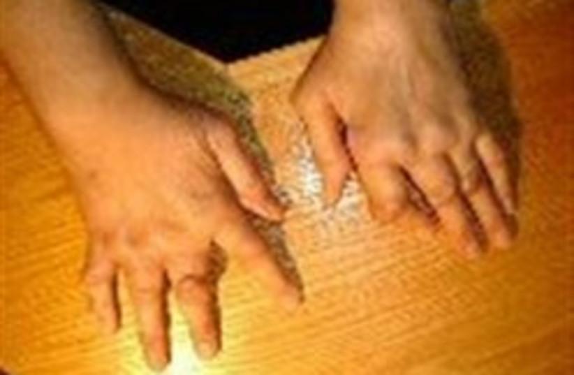 rheumatoid arthritis 248.88 (photo credit: )