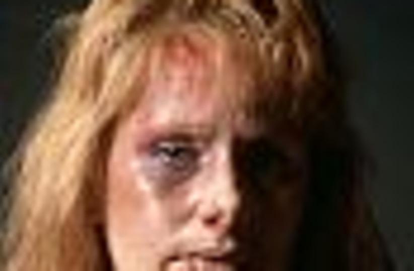 battered woman 88 (photo credit: )