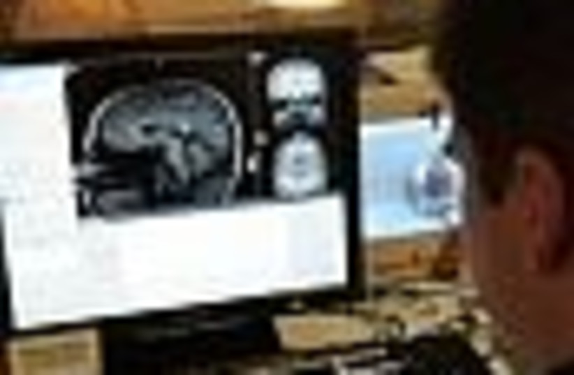 brain scan 88 (photo credit: )