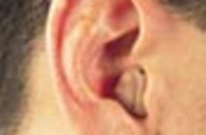 hearing aid 88 (photo credit: )