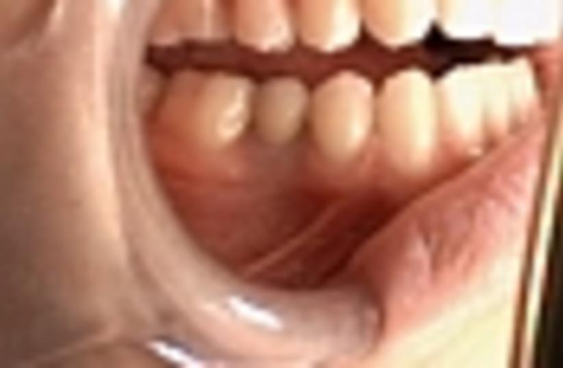 teeth 88 (photo credit: )
