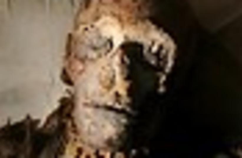 mummy 88 (photo credit: )