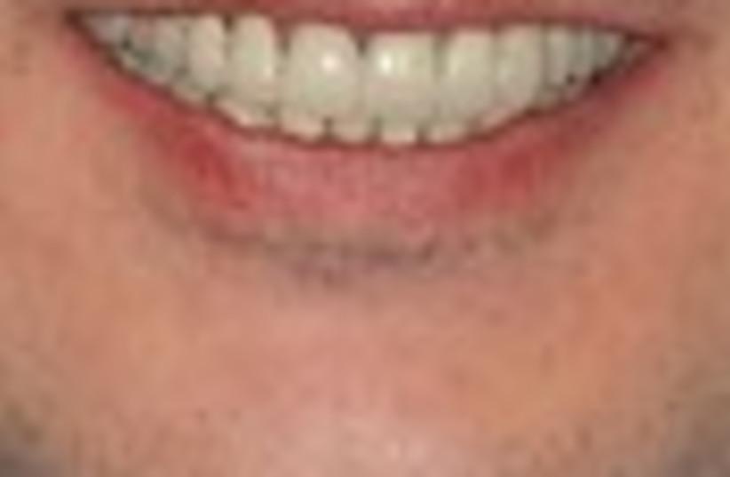 teeth man 88 (photo credit: )