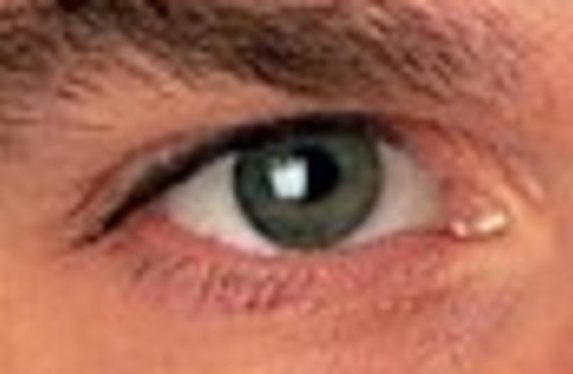 eye 88 (photo credit: )