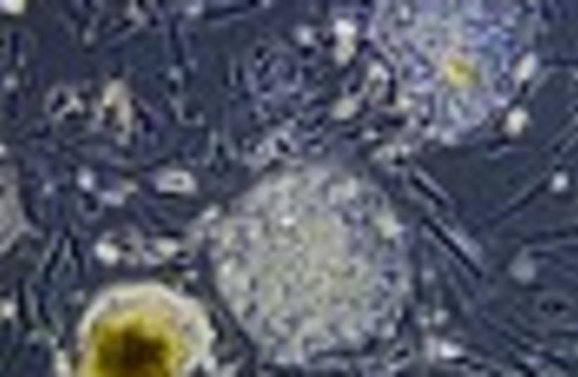 stem cell 88 GENERIC thumbnail (photo credit: )