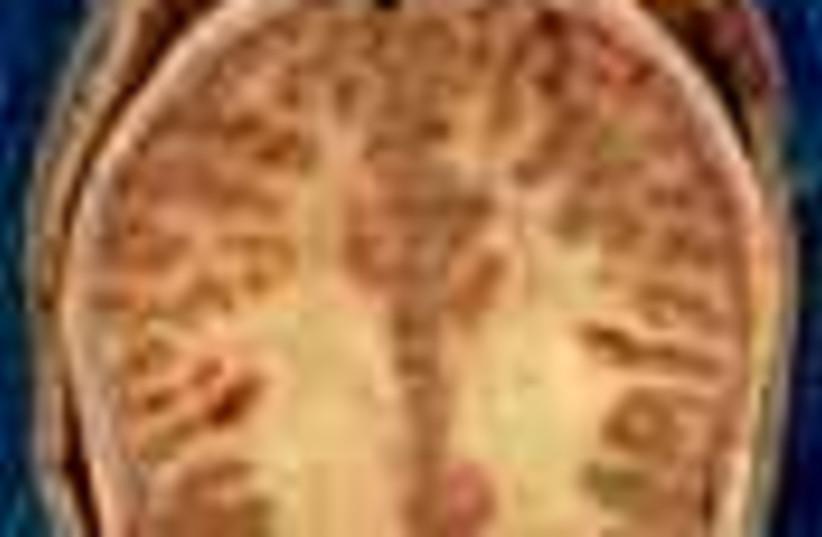 brain 88 (photo credit: )