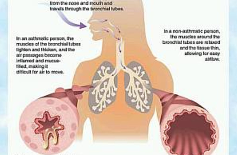 asthma 298.88 (photo credit: American Academy of Asthma, Allergy & Immunology)