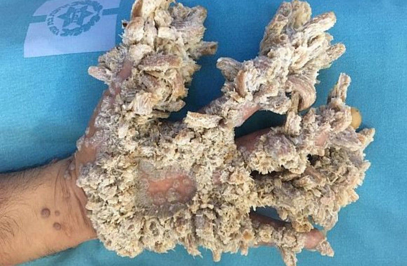 """The hand of a Gaza resident who suffers from an extremely rare condition called """"tree man syndrome"""" (photo credit: HADASSAH UNIVERSITY MEDICAL CENTER)"""