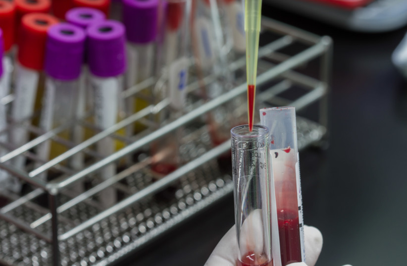 Pipette dropping a sample in test tube (photo credit: INGIMAGE)