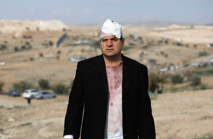 JOINT LIST CHAIRMAN Ayman Odeh is seen after he was injured last year during a clash with police in Umm al-Hiran, an unrecognized Beduin village in the Negev. (photo credit: AMIR COHEN/REUTERS)