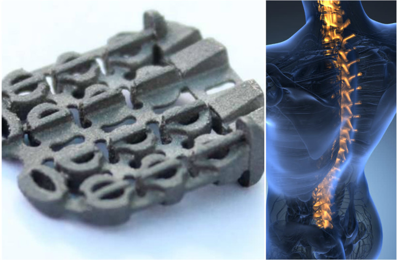 ZygoFix's spin and an illustration of the human spine (photo credit: COURTESY/ING IMAGES)