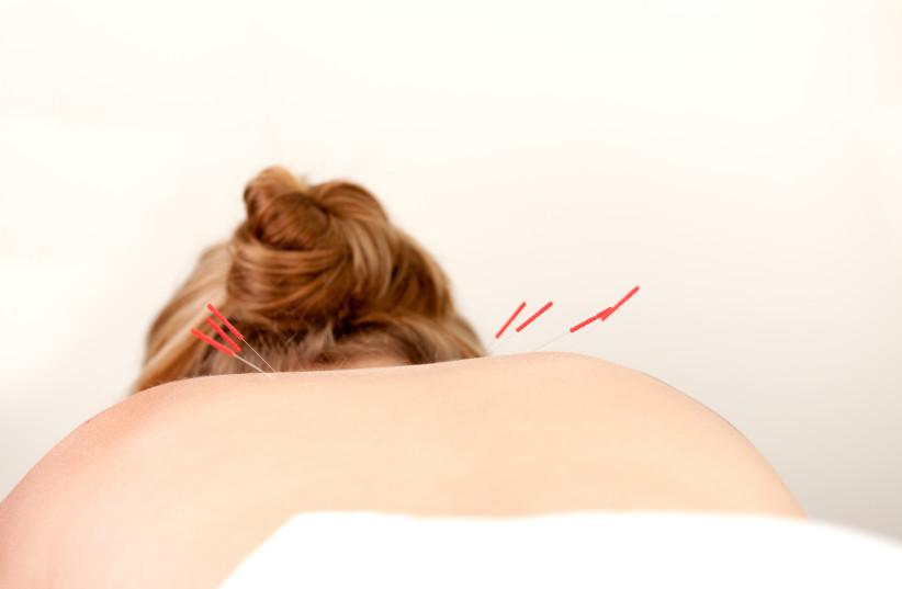 Acupuncture treatment (photo credit: INGIMAGE)
