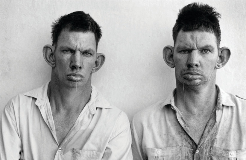 ROGER BALLEN'S 'Dresie and Casie, twins,' and 'Deathbed.' (photo credit: Courtesy)